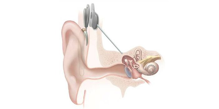 cochlear_implants.jpg